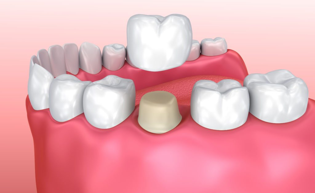 Dental crown installation process, Medically accurate 3d illustration crowndentaltoothceramicdentistry3d illustrationacheartificialbiteboerborerbucklercapscarecementcliniccobaltdefensedenturedrillhumaninstallationkeepinglablaboratoryloselowmacromedicalmedicinemetalprocessprosthesisprotectprotectionpulprecoveryrestorationrootsafeguardshieldstructuretemporarytreatmentShow more