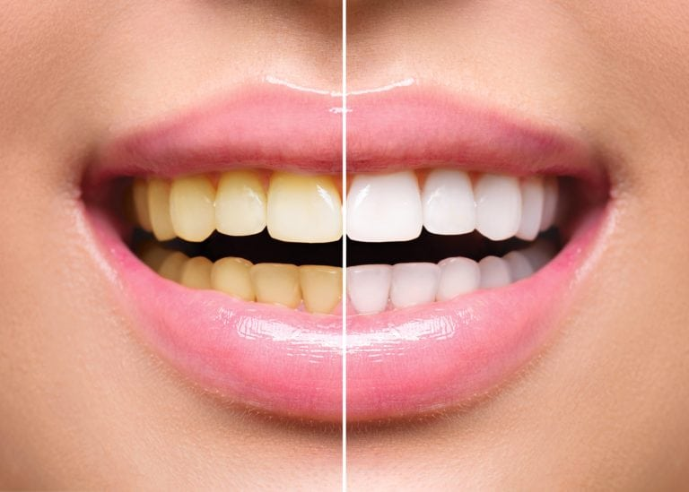 Close up of a before and after teeth whitening smile. Left side shows discolored teeth and right side shows whiter, brighter teeth after a professional teeth cleaning procedure.