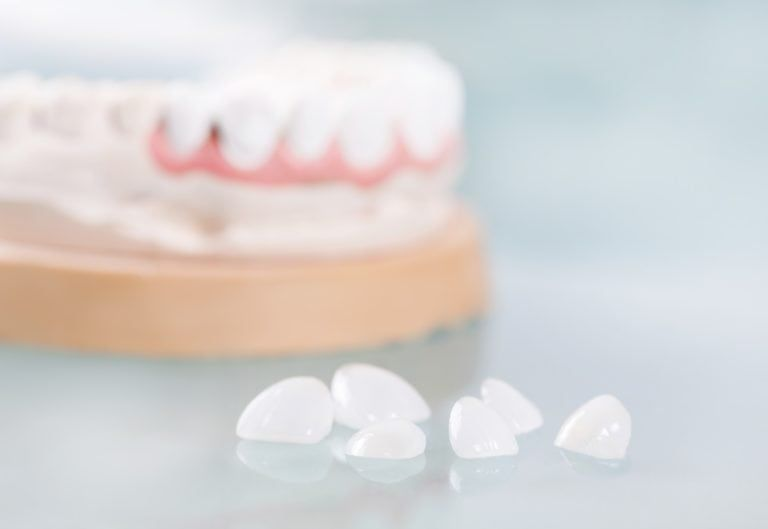 porcelain veneers on a plain background