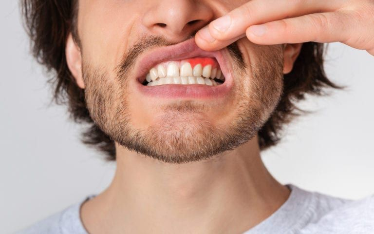 Man revealing gums for periodontal disease inspection